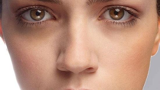 Nguyên nhân thâm quầng mắt
